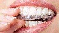 Tratamento caseiro para tirar manchas dos dentes