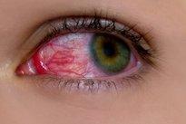 6. Glaucoma