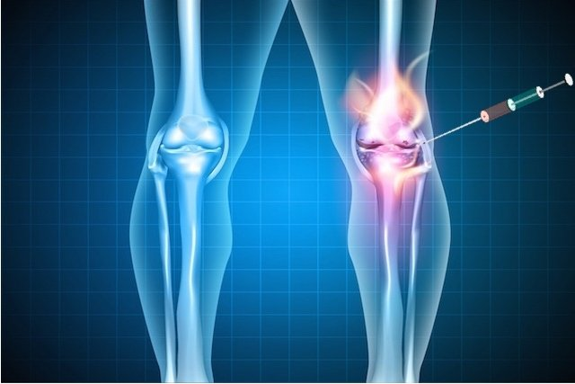 Infiltração no Joelho combate a Dor e melhora a Artrose