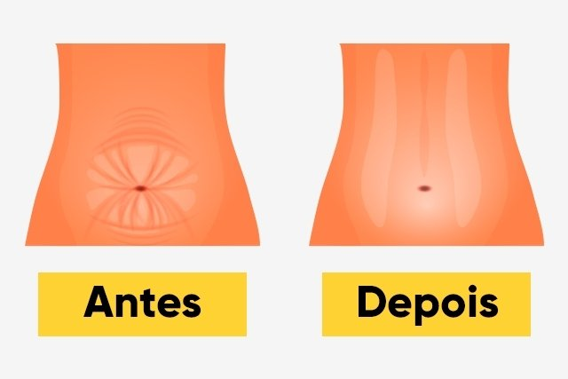Como é feita a mini abdominoplastia e como é a recuperação