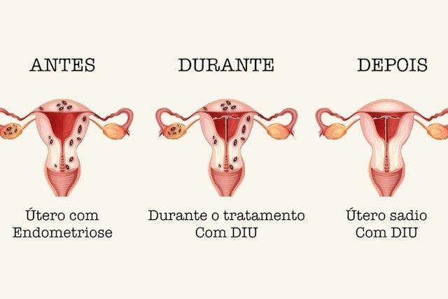 Tratamento da endometriose com DIU hormonal