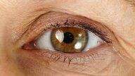 7 alterações nos olhos que podem indicar doenças
