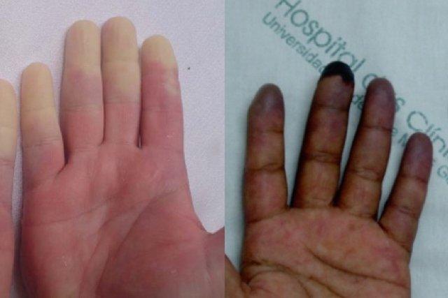 Doença de Raynaud: quando os dedos mudam de cor