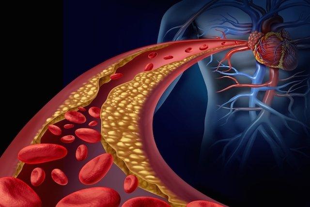 O que é a angina e como tratar