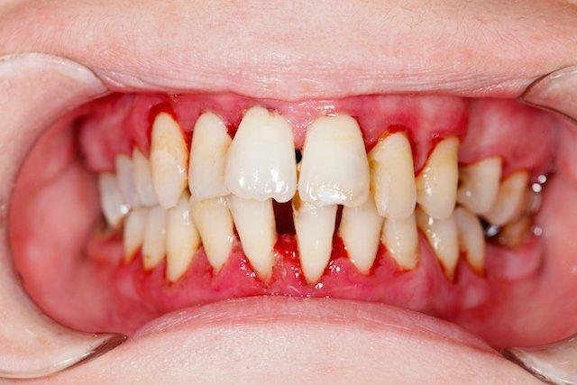 Dentes moles e separados podem indicar Doença