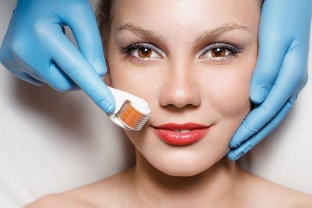 7 formas de tirar cicatriz de acne do rosto