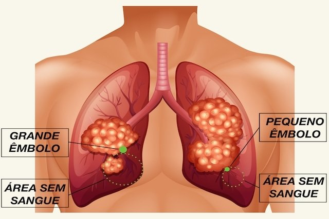 Consequências da Embolia Pulmonar