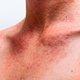 O que é Urticaria nervosa