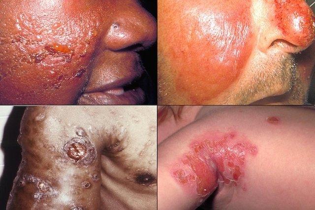 celulitis gangrenosa tratamiento