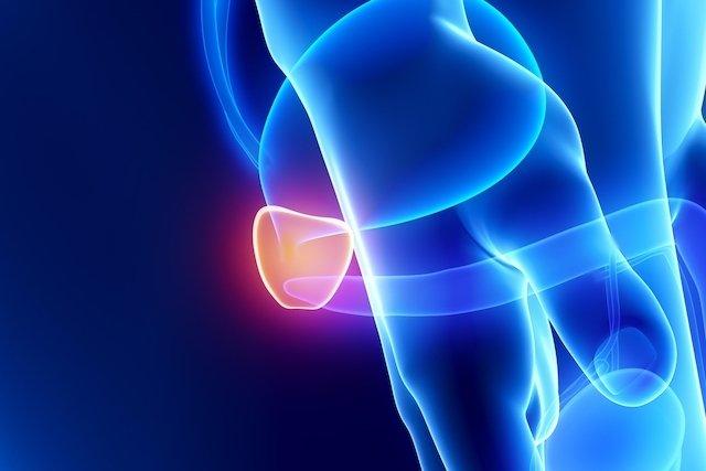 Tratamento para próstata aumentada