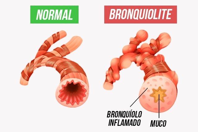 Como identificar e evitar a bronquiolite