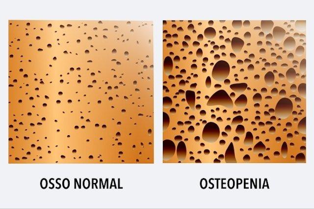 O que é e como identificar a Osteopenia