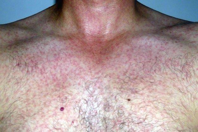 Pequenas manchas vermelhas na pele