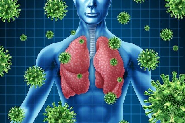 Principais sintomas e causas da pneumonia viral