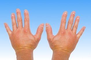 Resultado de imagen para manos hinchadas