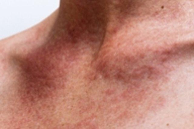 Ronchas rojas y comezón en la piel pueden indicar Alergia al Calor