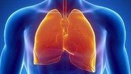 O que é enfisema pulmonar, sintomas e diagnóstico