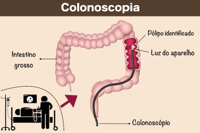 Exame do intestino colonoscopia