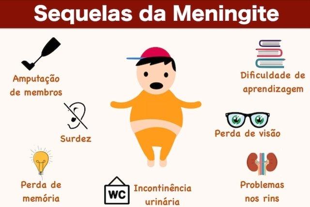 Saiba quais são as Sequelas da Meningite