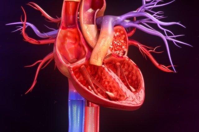 Sintomas da cardiomiopatia diabética e como tratar