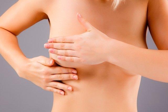 7 dúvidas comuns sobre a Mamografia
