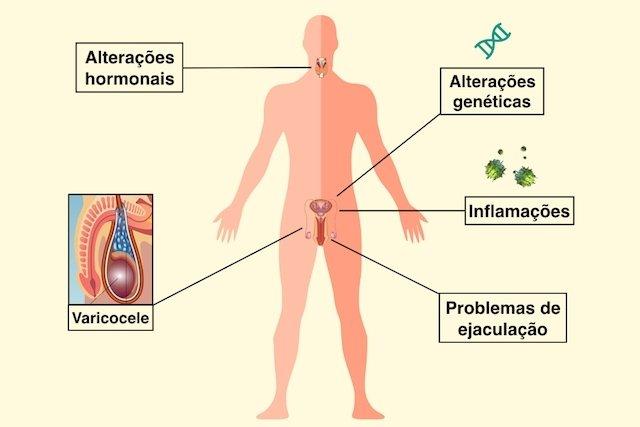 Causas de infertilidade no homem