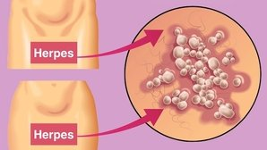 How to identify the symptoms genital herpes