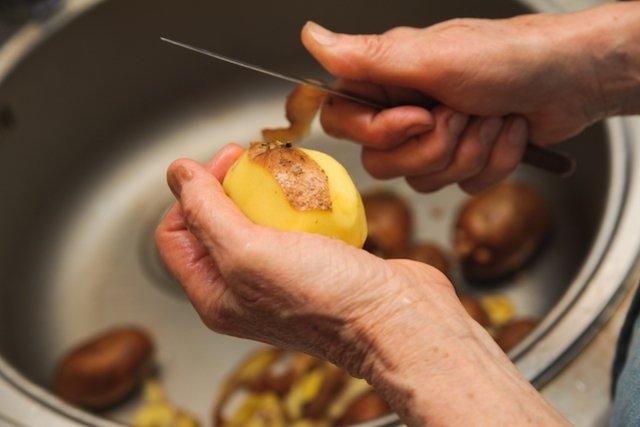 Saiba como identificar os sinais e sintomas do Alzheimer