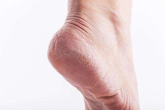 Como tratar calosidades no pé diabético