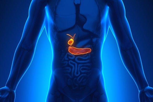 Câncer no pâncreas é grave e geralmente não tem cura