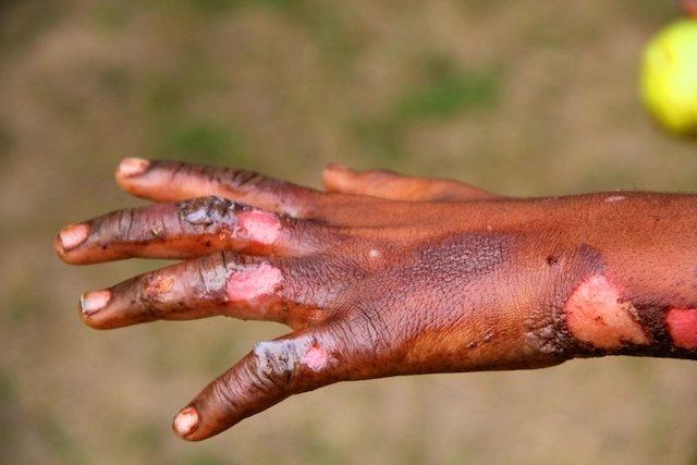 Analgesia congênita: A doença onde a pessoa nunca sente Dor