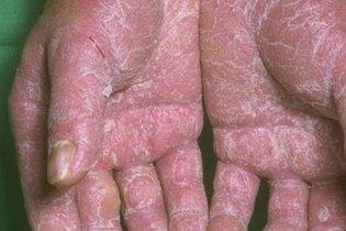 Eczema nas mãos grave