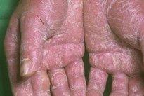 Como identificar a Alergia nas Mãos