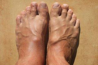 ¿Qué hacer cuando las manos y los pies están hinchados?