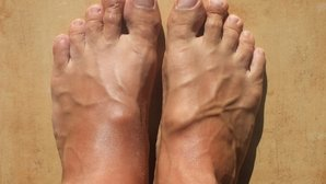 Manos y pies hinchados: 12 principales causas (y qué hacer)
