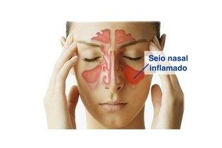 Seio nasal inflamado na sinusite