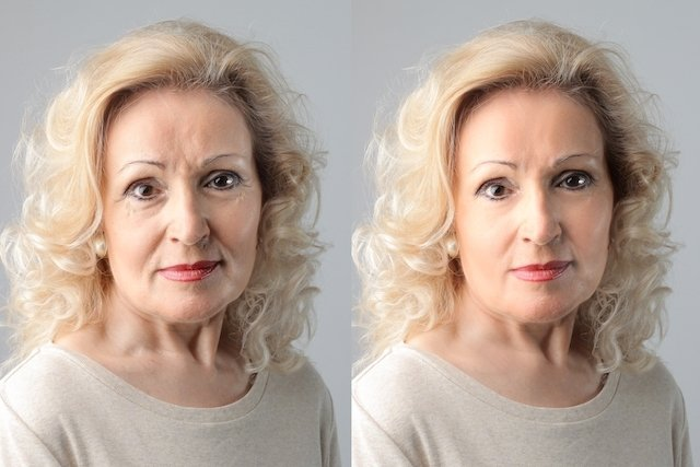 Antes e depois da Radiofrequência