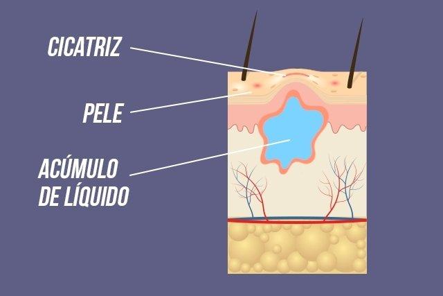 O que é e como tratar o seroma