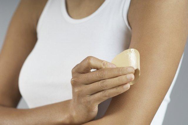 Adesivo anticoncepcional: o que é, como usar, vantagens e desvantagens