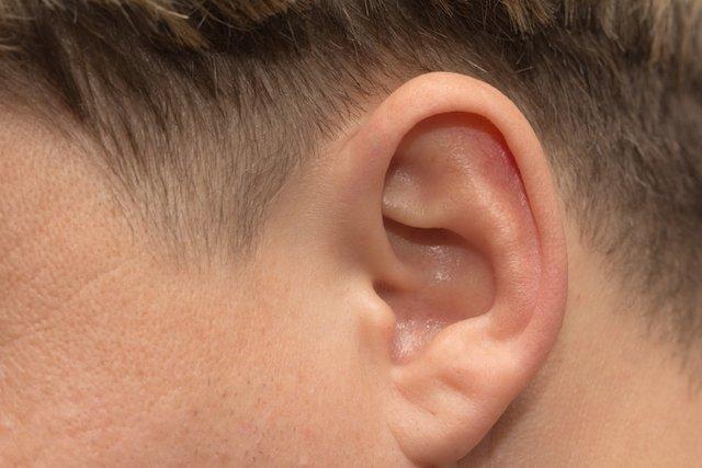 Cirurgia para corrigir orelha de abano
