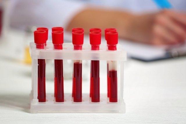 O que é a progesterona e para que serve