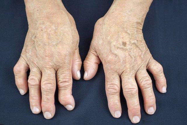 Artrite pode ser causada pela Psoríase
