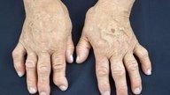 Artrite psoriática: O que é, Sintomas e Tratamento