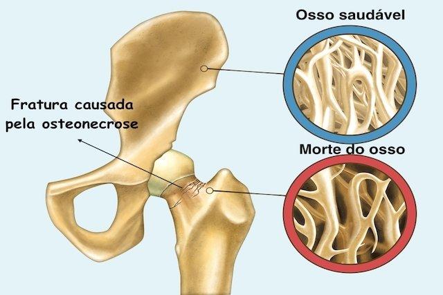 Como identificar e Tratar a Osteonecrose