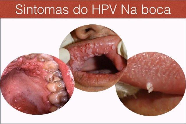 Sintomas e Tratamento do HPV na boca