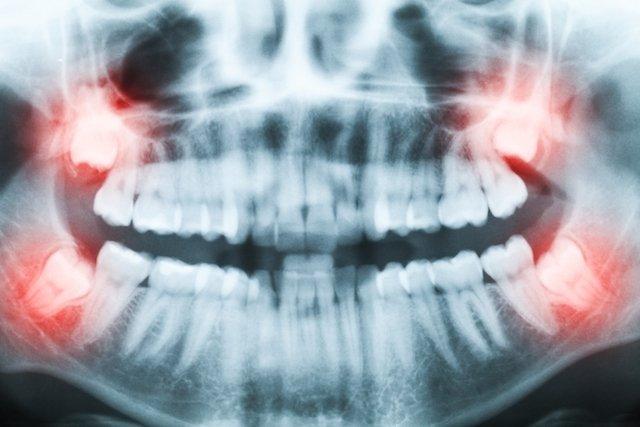 Dentes sisos que precisam ser retirados