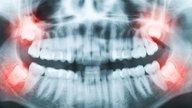 Dente do siso: quando tirar e como é a recuperação