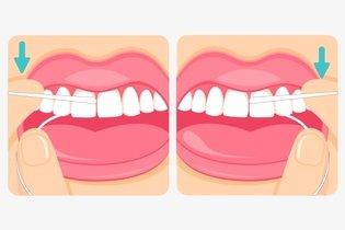 441be87b1 Como passar o fio dental corretamente - Tua Saúdee