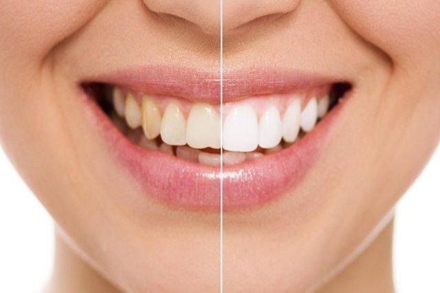 Antes e depois do clareamento dental