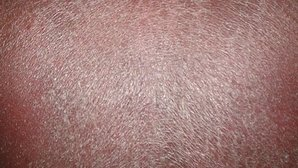 White Spots On Skin: 7 Causes & How To Get Rid of Them